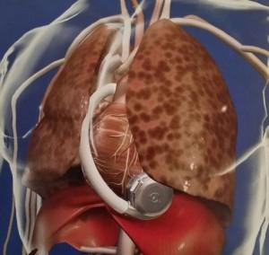Quelle: Forum Sanitas - Das informative Medizinmagazin - Sonderdruck